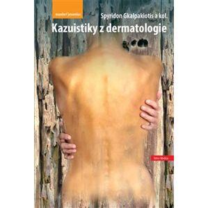 Kazuistiky z dermatologie - Spyridon Gkalpakiotis